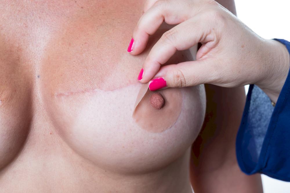 mamelon-prothétique-pink-perfect